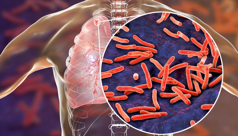 Course Image Εξωπνευμονική Φυματίωση