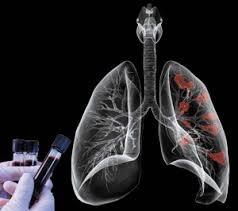 Course Image Φυματίωση και ειδικές ομάδες ασθενών