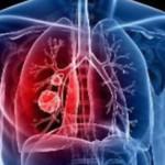 Course Image Eνημέρωση για τη Φυματίωση
